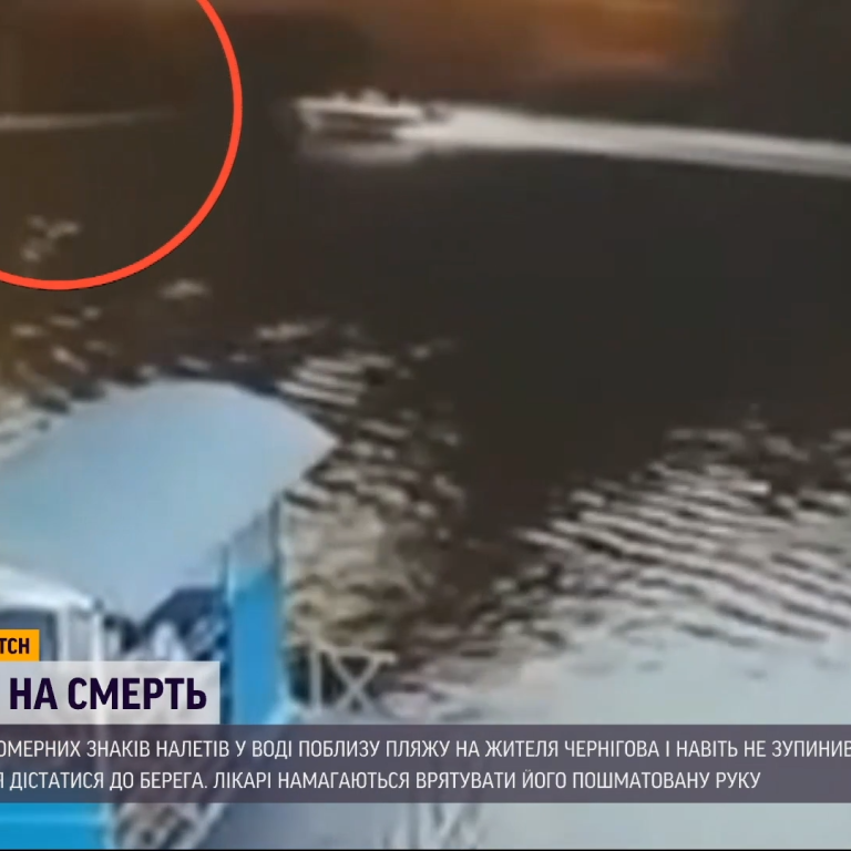 """""""Рука наче пройшла через м'ясорубку"""": у Чернігові на річці моторний човен збив чоловіка"""