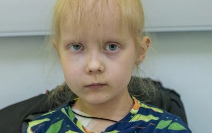 Допоможіть Яні здолати злоякісну пухлину, яка розрослася в її обличчі