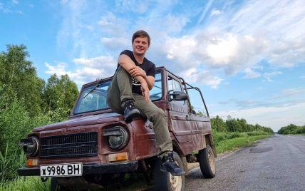 Дмитрий Комаров напугал фанатов распухшим лицом с красными пятнами