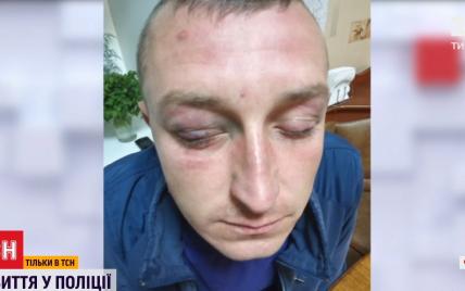 """Тримали за ноги з мосту: інкасатор звинувачує поліцейських у """"вибиванні"""" зізнання про крадіжку грошей"""
