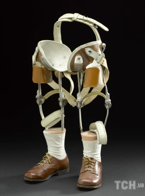 Пара протезов ног, которую использовал Эдди Фриман, ребенок, пострадавший от препарата талидомид / © Getty Images