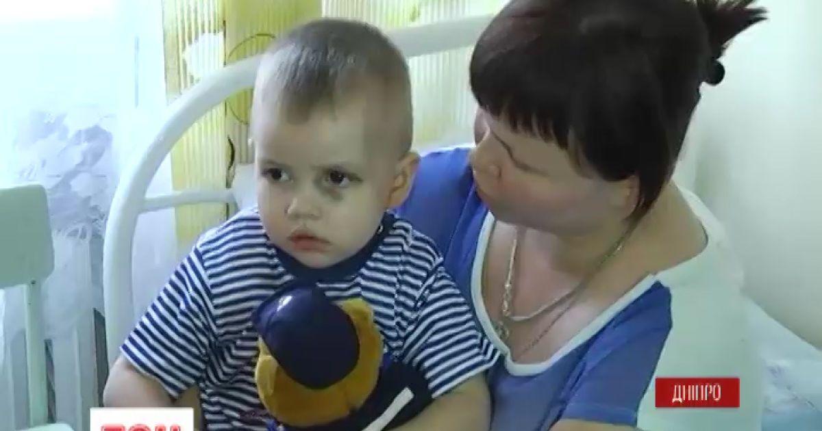Дворічного хлопчика з Авдіївки, що випав із вікна, доправили до реанімації Дніпра