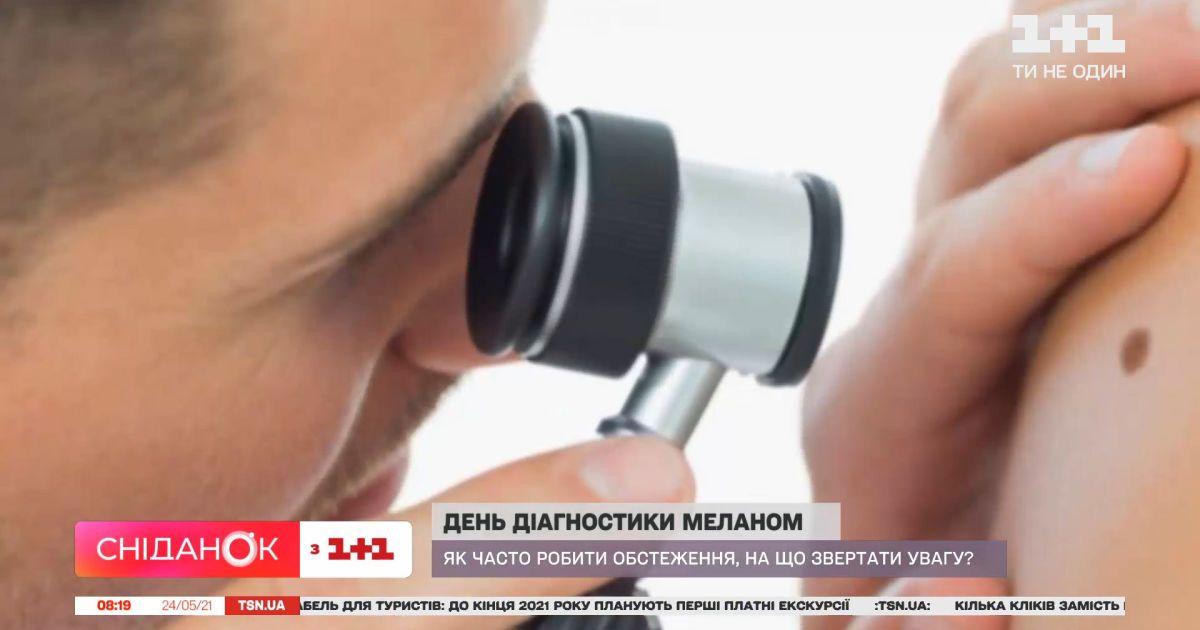 Меланома: про ризики та профілактику цього захворювання