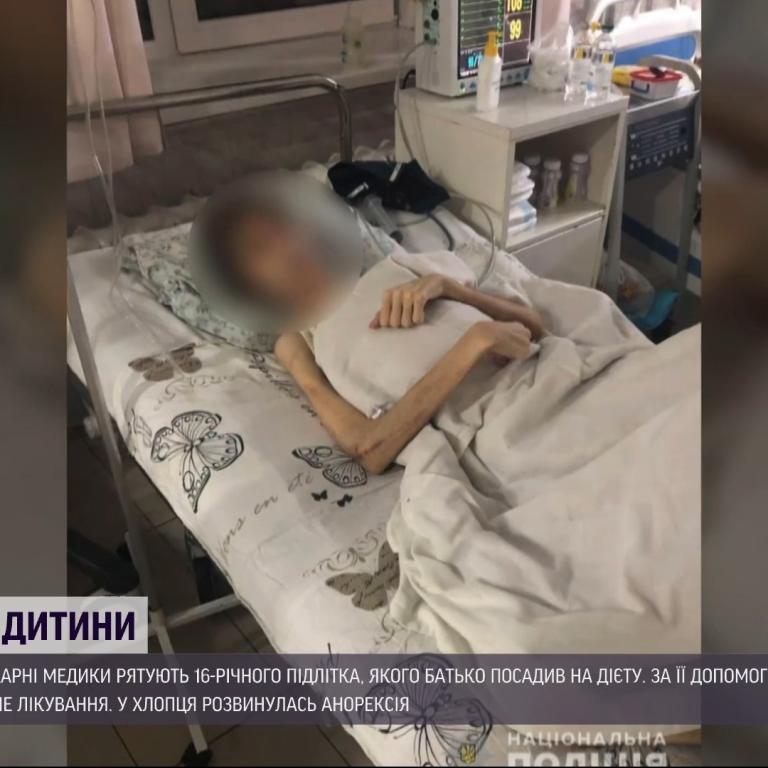 """""""Зріст 180 см, а вага - 30 кг"""": в Одесі лікарі рятують хлопця, якого батько лікував """"від нечистого"""""""