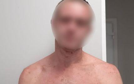 Связал руки, ноги и жестоко изнасиловал: в Киевской области мужчина надругался над девушкой (фото)