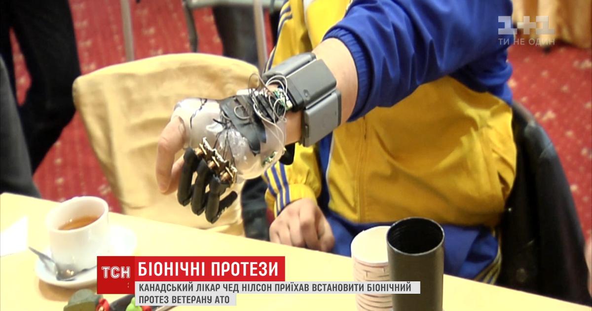 Врач из Канады приехал в Украину, чтобы установить протез воину АТО