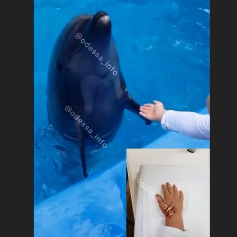 Дельфін вкусив хлопчика за руку: в одеському дельфінарії пояснили, чому так сталось і хто у цьому винен