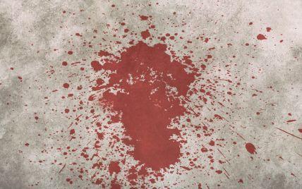 Подробности убийства отцом 8-летнего ребенка на Житомирщине: обнаружить тела помогла собака