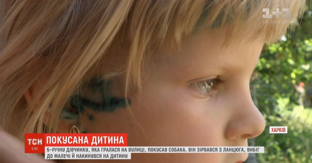 На Харьковщине 5-летнюю девочку покусала собака