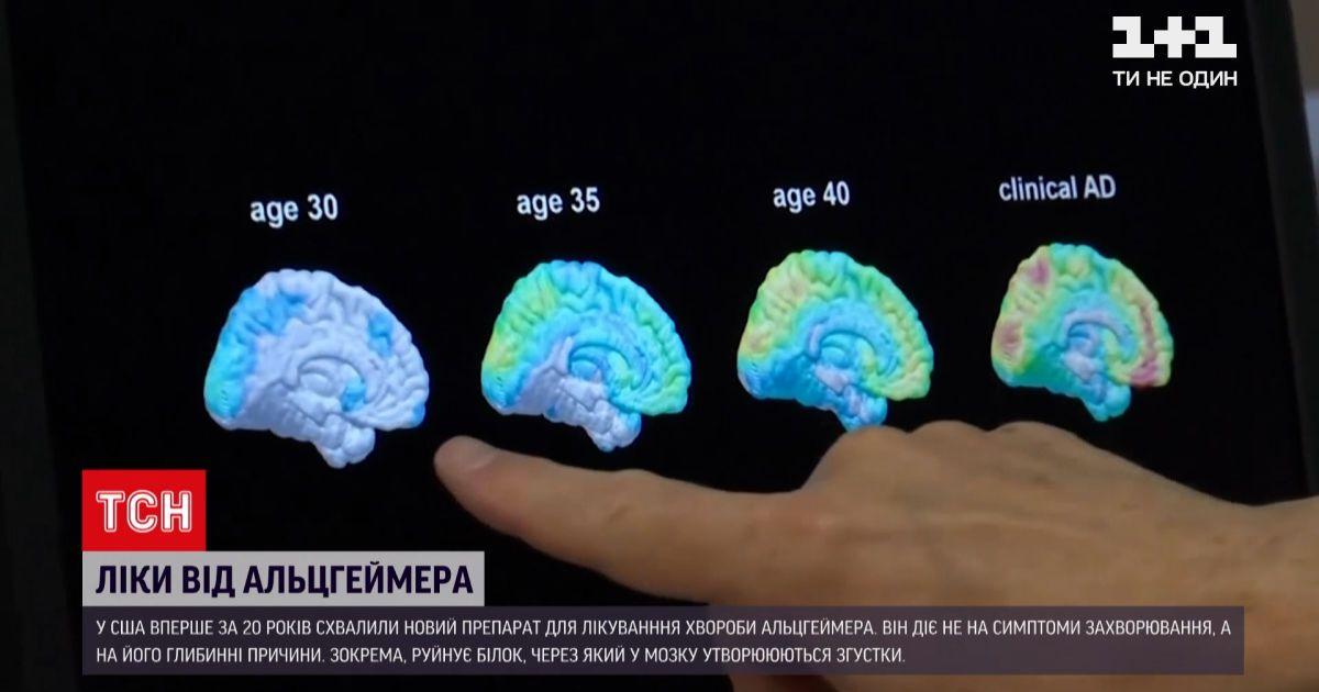 Новости мира: в США впервые за 20 лет одобрили препарат для борьбы с Альцгеймером