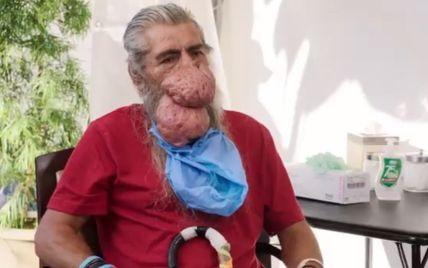 Не мог есть, на улице боялись люди: врачи удалили из носа мужчины опухоль размером с его голову