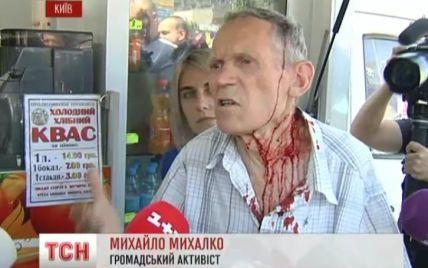 У Києві продавець шаурми розбив голову дідусю