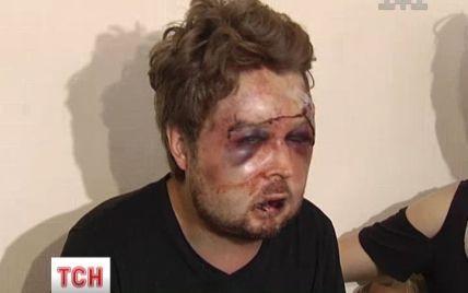 Ідеолог Femen заявив, що його жорстоко побили СБУшники, які вели за ним стеження