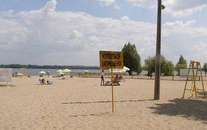 В Киеве от лептоспироза умерли двое людей