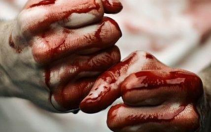 Депутат із Нікополя жорстоко побив жінку