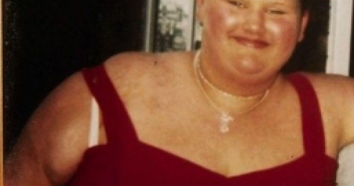 Малісса Джонс до резекції шлунка / © closermagazine.com