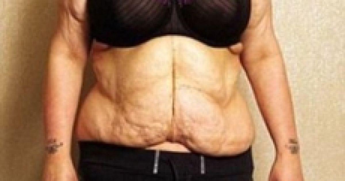 Малісса Джонс після резекції шлунка / © featureworld.co.uk