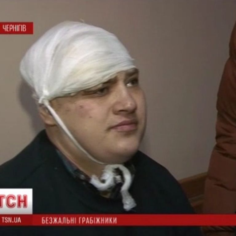 Жители Чернигова напуганы нападениями парней, которые ломают ребра и крушат черепа