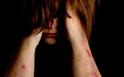 На Тернопільщині старшокласниці залякували розправою та жорстоко побили 13-річну дівчину