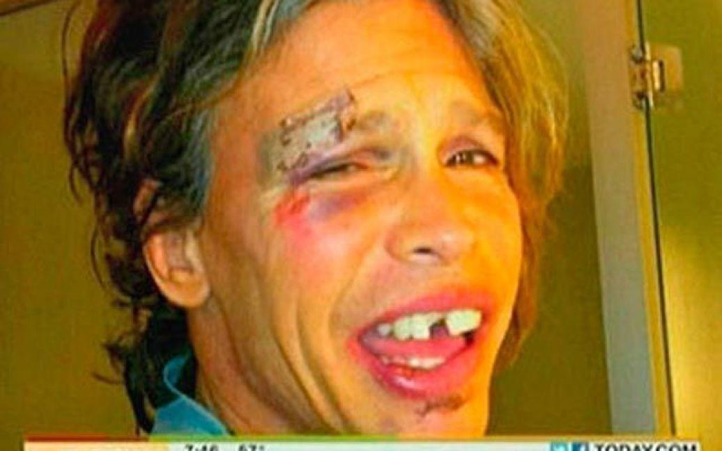 Тайлеру оперативно вставили передні зуби / ©