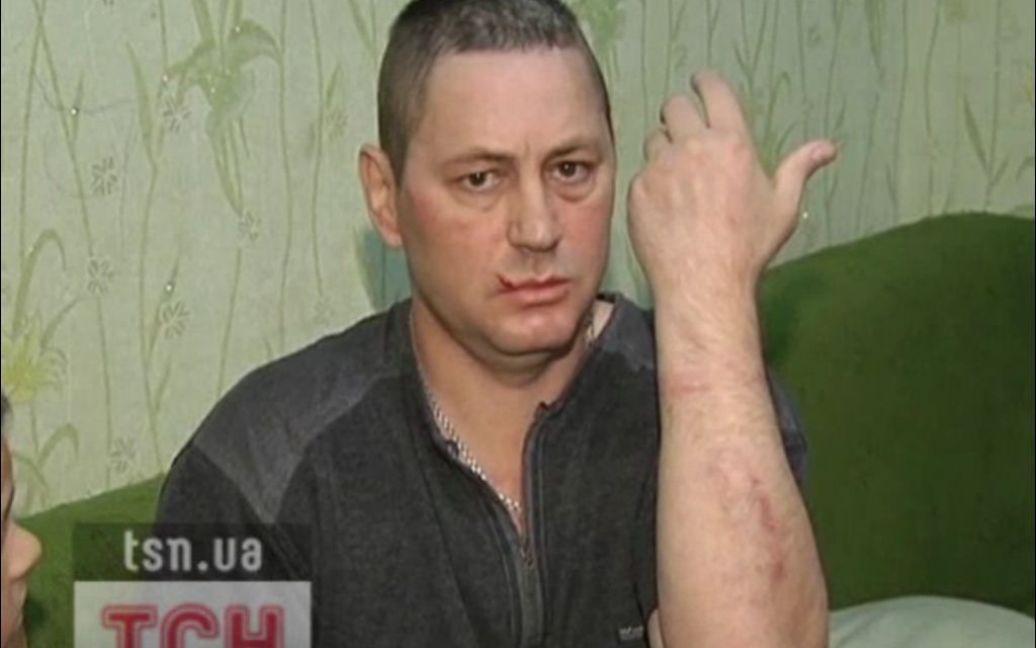 Після обшуку інваліда спішно забрали на обстеження до нейрохірургії / © ТСН.ua