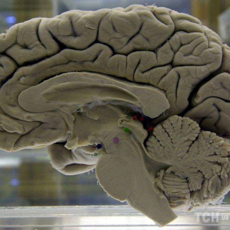 З днем мозку всіх причетних: цікаві факти про головний людський орган та вітальні головоломки