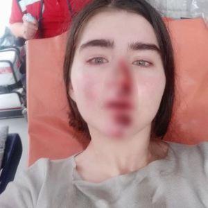 Прыгала на ходу, чтобы не попасть под машину: в Киеве девушка разбила лицо и руки из-за неисправного арендованного самоката