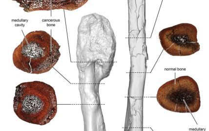 Ученые впервые обнаружили рак в кости динозавра, который жил 77 миллионов лет назад